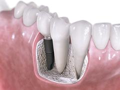 Implantat im Kiefer, Quelle: AstraTech