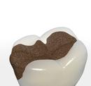 Zahn mit Karies
