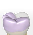 Zahn mit grosser, bruchgefährdeter Füllung