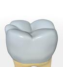 Durch eine Krone geschützter Zahn