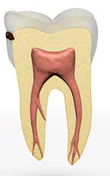 Zahn mit beginnender Karies