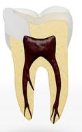 Zahn bakteriendicht verschlossen