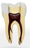 Zahn wird von oben eröffnet
