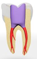 Zahn gefüllt mit Guttapercha (rot) und Kunststoff (violett)
